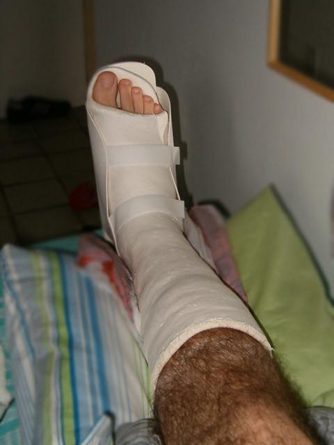 Sprained ankle | An athlete's life. | Felipe Quérette | Flickr