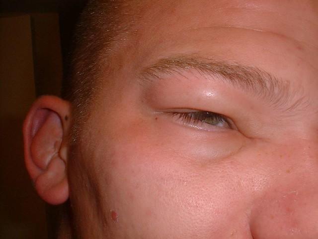 Allergic reaction to shellfish mark schmidt flickr for Allergic reaction to fish