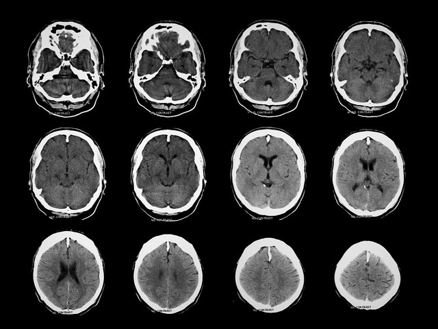 Brain Anatomy on CT - Axial Landmarks | Normal brain CT. Thi… | Flickr