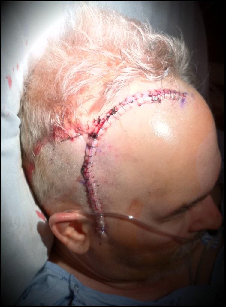 right craniotomy incision