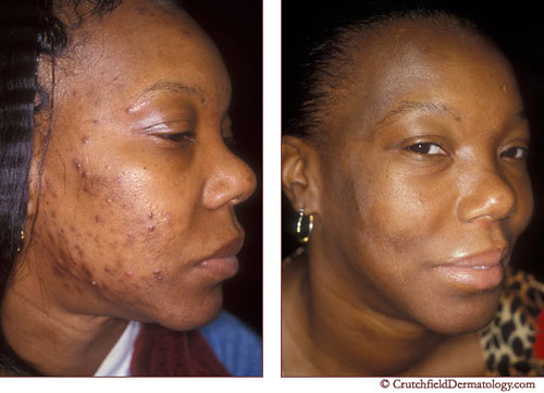 Acne laser treatment on dark skinned woman: before & after
