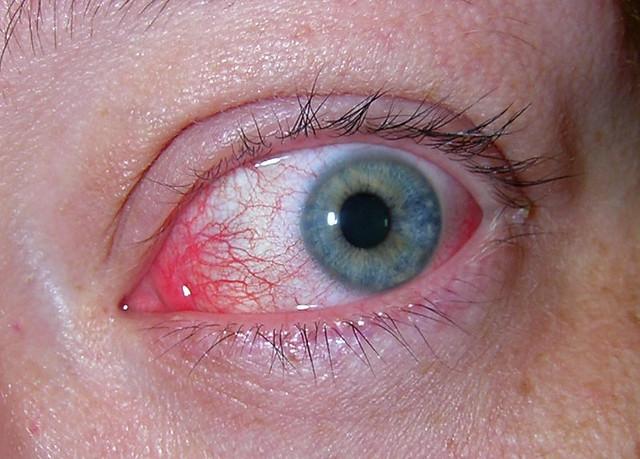 Røde Øjne   Udover en ordentlig omgang influenza med feber ...   640 x 459 jpeg 104kB