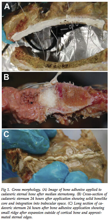Kryptonite Bone Cement - Cadaver Analysis | See article ...