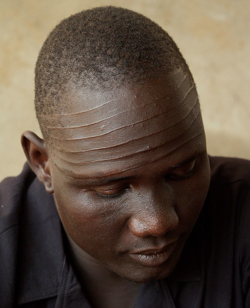 Nuer Scarification Captain Peter Juouch Of The Spla