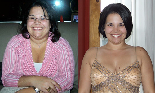 Comparison Weight Weight Loss Comparison