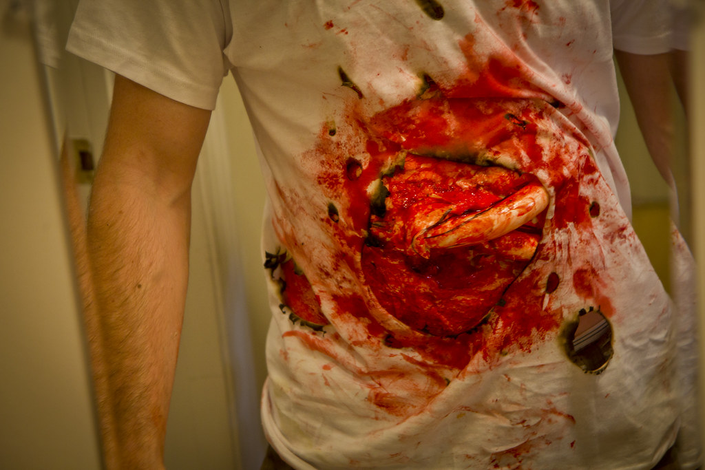 Shotgun wound | Rory Gatfield | Flickr