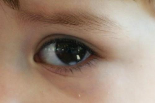Dark Spot In Dog S Eye