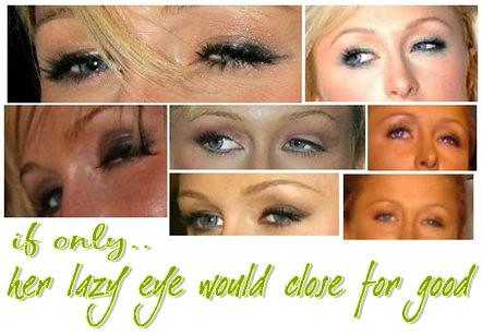 paris hilton lazy eye ... Paris Hilton