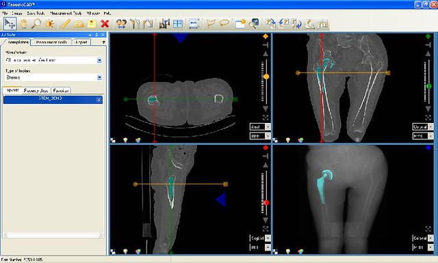 orthopedic templating software surgical medical software for orthopedic templating flickr
