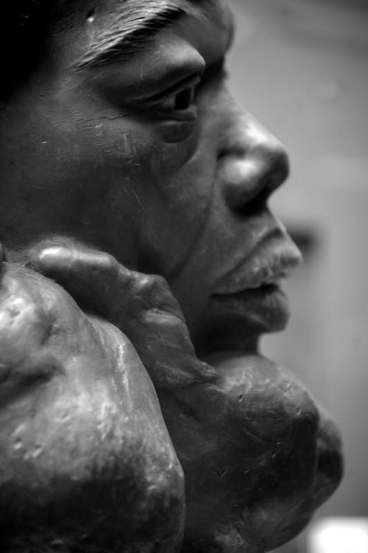 Scrofula Anatomical Wax Model Of Scrofula Tubercul