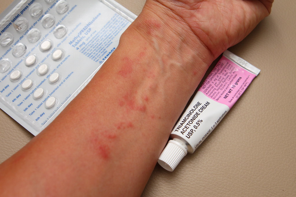 triamcinolone acetonide how long rash