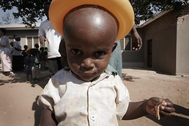 forehead II | remember the giant forehead kid from biharu ...