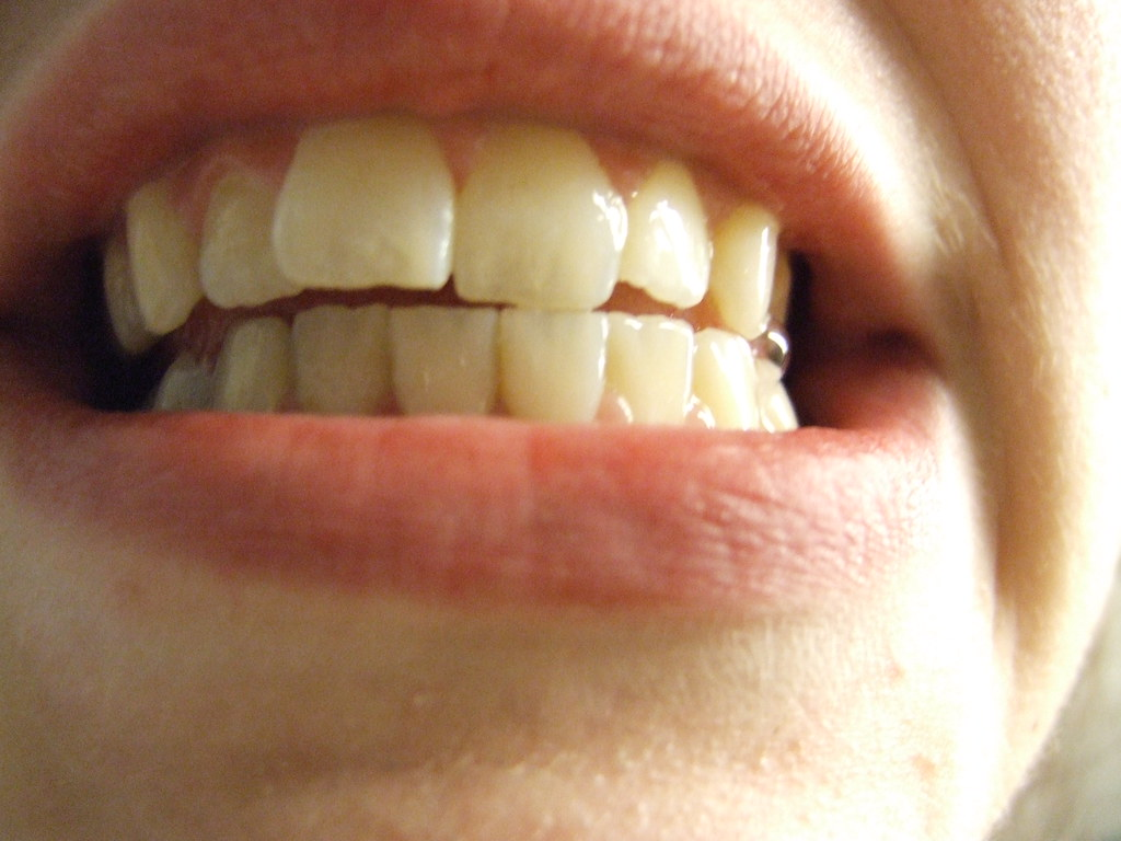 Image result for teeth flickr