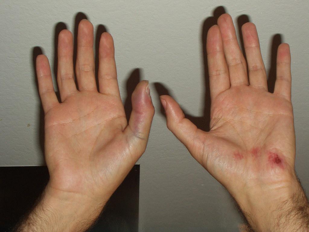 Broken Thumbs