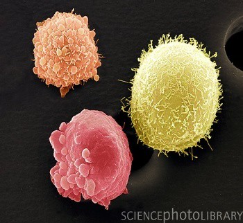 Scienctific opinions on susceptibility to skin cancer
