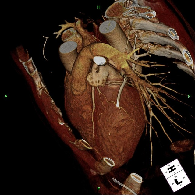 Cardiac Ct Angiogram A 3d Image Of The Heart Obtained By