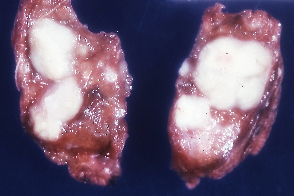 Skin Fungus On Leg - Doctor insights on HealthTap