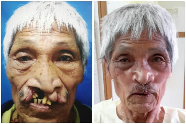 Paro, Bhutan, Sep 2015: Kuku Tashimo, 73, was the oldest patient to receive surgery to repair his bilateral cleft lip. He almost did not make the cut as general anaesthesia would have been risky for him due a severe pre-existing chronic lung condition, but he braved the operation under local anaesthesia. Credit: Smile Asia Facebook page