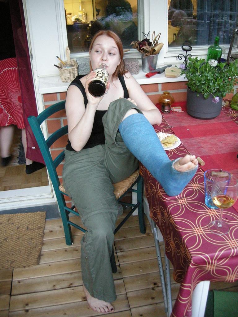 suviktiuku05 broken leg ankle foot cast crutches toes