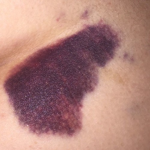 Big Bear bruise