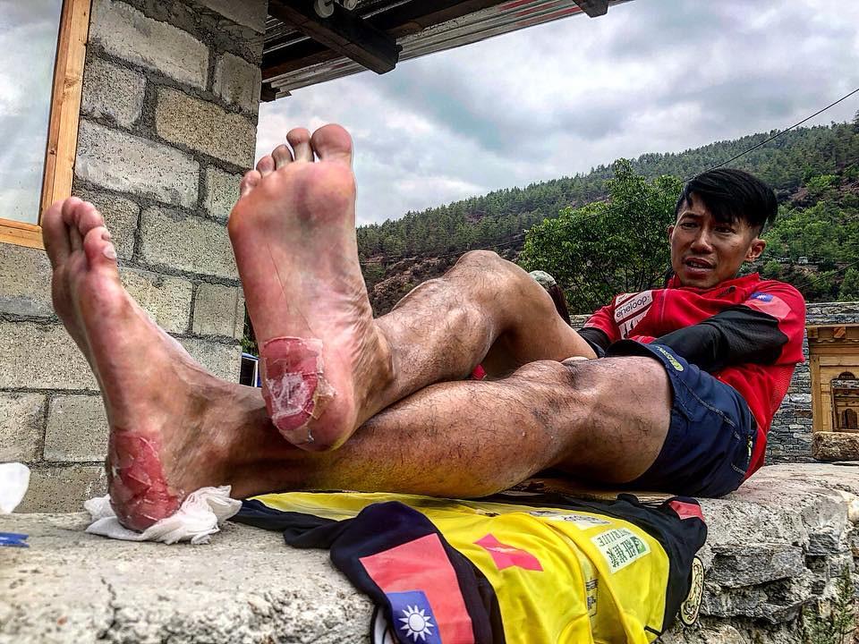 陳彥博腳跟傷勢嚴重仍領先群雄。(取自陳彥博臉書粉絲專頁)