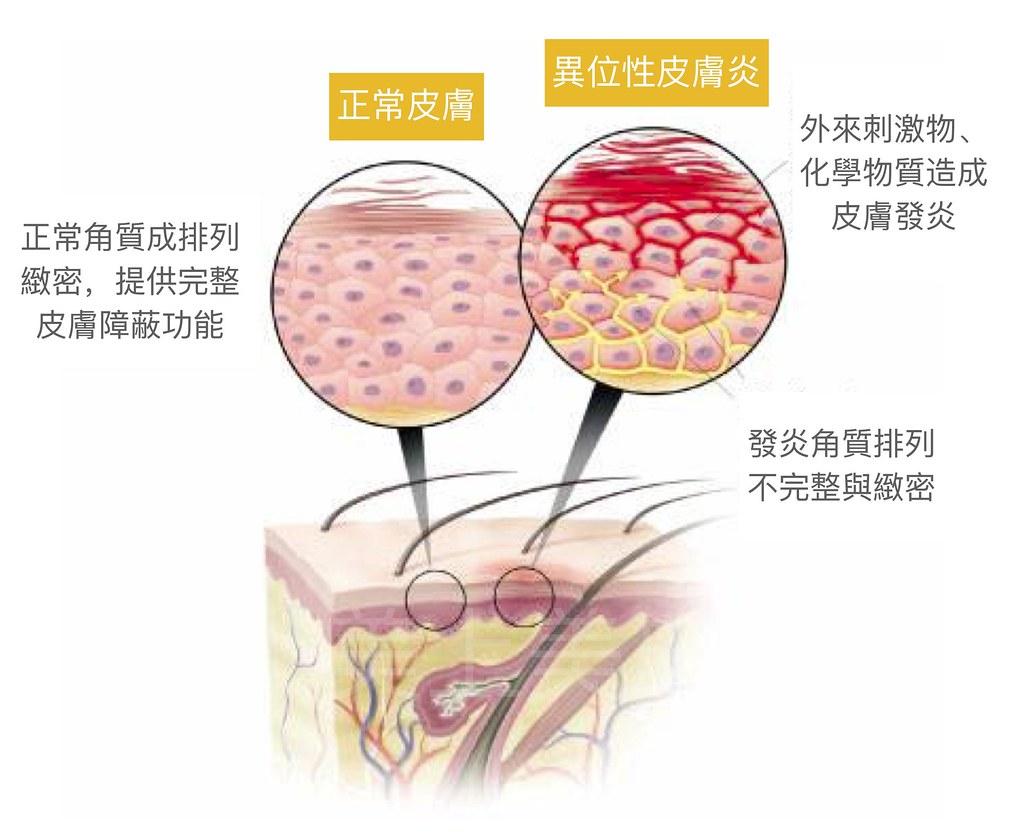 異位性皮膚炎是一個皮膚保濕功能缺損的皮膚病,所以要把保濕功能補齊,對異位性皮膚炎的治療有很大的幫助。