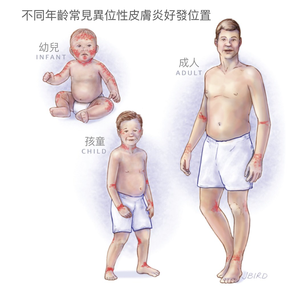 嬰兒異位性皮膚炎比成人嚴重,因為角質層比較薄,皮膚保護能力比較差,在使用外用藥膏與保濕劑要更加小心。