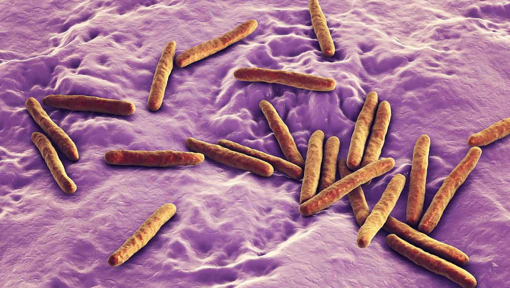 Microscope image of TB mycobacterium