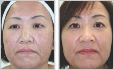 完美的除斑機器,完美的除斑科技,脈衝光幫您消除斑點消除皺紋,讓肌膚毛孔縮小。最強的除斑雷射,最夯的除斑雷射就是脈衝光,全面消除斑點並打擊肌膚老化問題。
