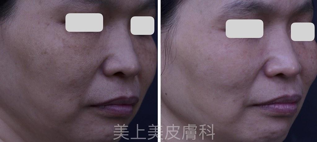 光跟雷射是皮膚科醫師治療病人的好武器,可以治療很多皮膚問題,像是痘疤、青春痘、疤痕、泛紅、斑點等等。