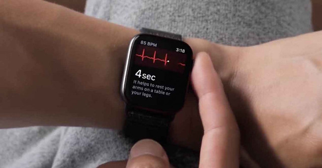 apple-watch-4-ecg