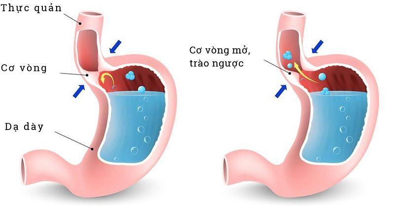 Trào ngược dạ dày thực quản