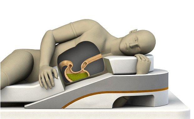 Trào ngược dạ dày thực quản 2