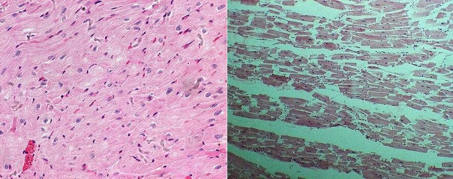 左邊是正常的心肌;右邊是一位暴斃的43歳白俄羅斯居民的心肌,累積有45.4Bq/kg的放射性銫137。後者出自前白俄羅斯哥梅利醫科大學院長的研究。