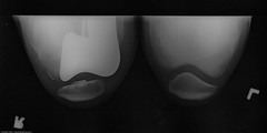 Smith & Nephew Journey Deuce Bi-compartmental unit) 1 of 3 Michael L. Baird's right knee as shown in x-ray 11 June 2008