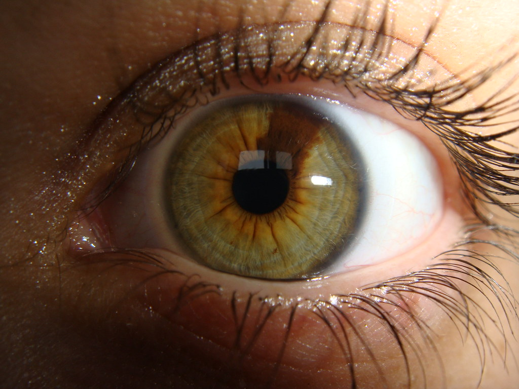 Sectoral Heterochromia In Anatomy Heterochromia Refers