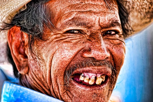 Man With Bad Teeth Mexico Flickr Photo Sharing