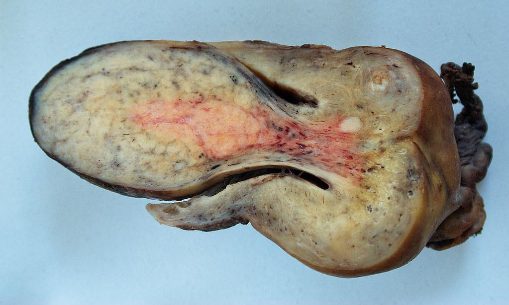 What R Cervical Cancer Symptoms