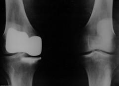 Smith & Nephew Journey Deuce Bi-compartmental unit) 3 of 3 Michael L. Baird's right knee as shown in x-ray 11 June 2008