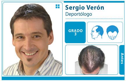Las ampollas la reconstitución instantánea para los cabellos