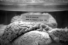 Brains of Epileptics | by James Mundie