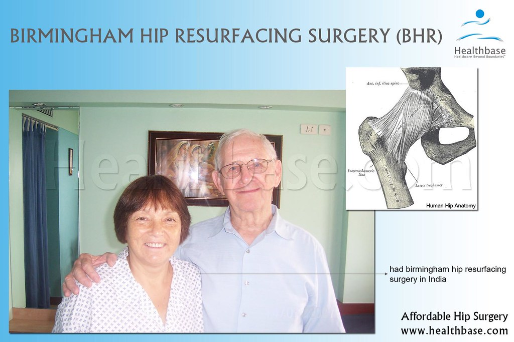 Birmingham Hip Resurfacing Surgery | For affordable hip ...
