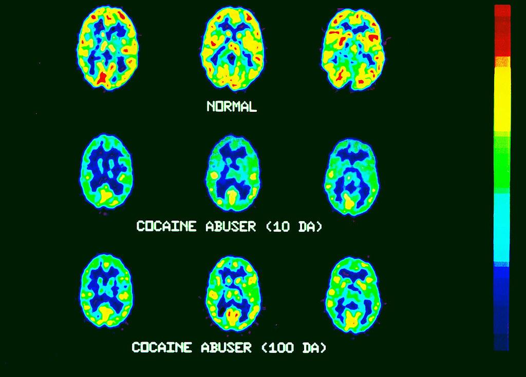 Cocaine Brain Scans Pet Pet Scans Normal And Cocaine