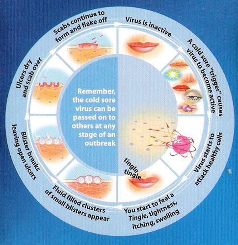 diagram of cold sore cold sore diagram