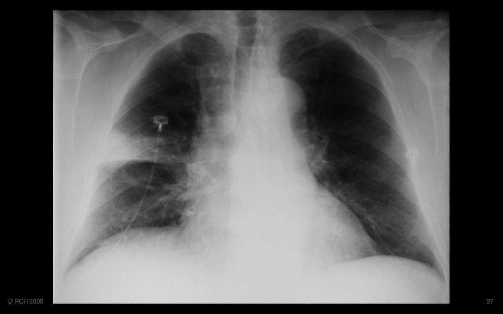 Mediastinal Widening, Pleuritic Chest Pain  Is It Of Conc. Issues Signs. Wedding Signs. Personnel Signs Of Stroke. Please Signs Of Stroke. Radiograph Signs. Tattoo Signs Of Stroke. Sci Fi Signs. Cataract Diagram Form Signs