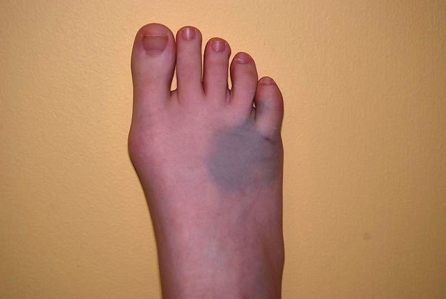Broken Toe From Tight Shoes
