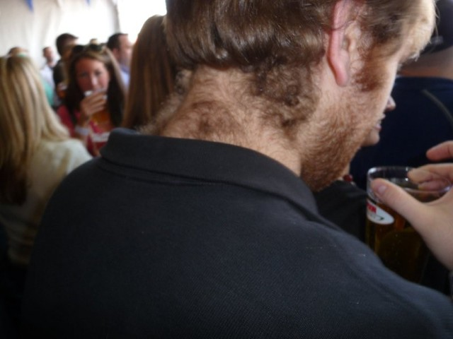 neck hair | Getting Edgy's Blog |Hairy Back And Neck
