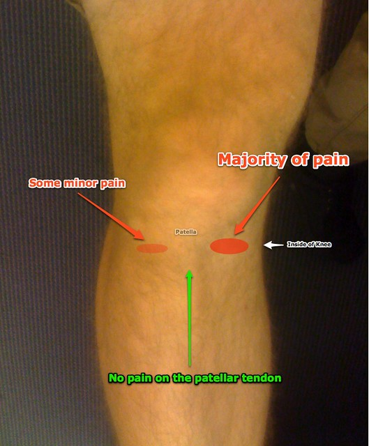 Diagram Of My Knee Pain Just Thought I Would Actaully Diag Flickr