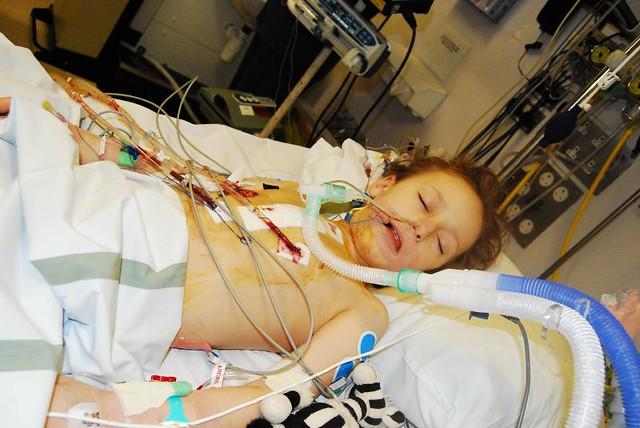 picu  intubated and sedated