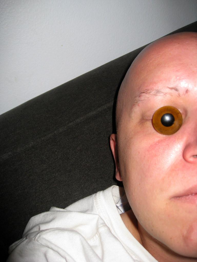 Eye Glass Repairs Bunbury
